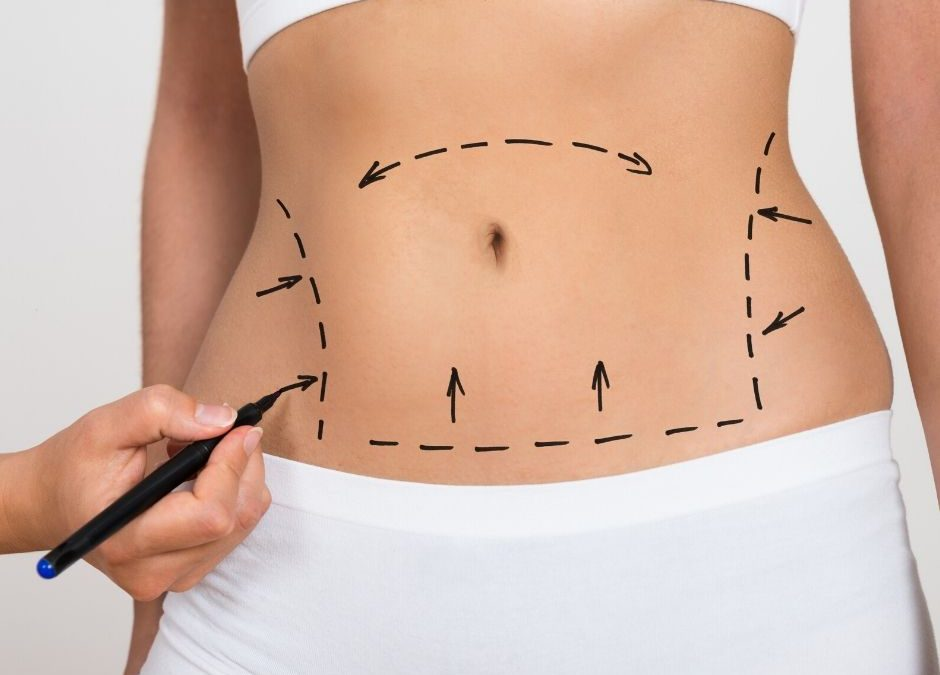 Marking stomach with marker