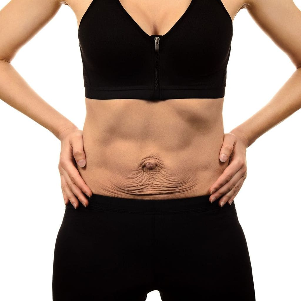 What is a Panniculectomy Tummy Tuck?